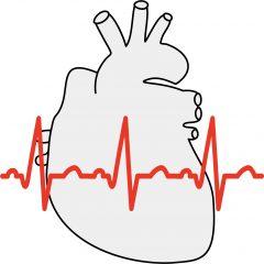 不整脈の診断には心電図検査を行います