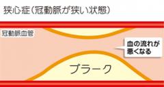 狭心症は冠動脈が狭くなった状態